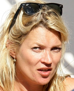 kate-moss-has-blemished-ski