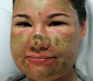 Bethany Storro has acid thrown on her face from a random stranger.