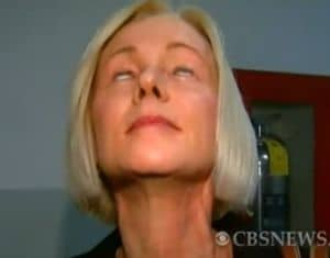 Woman cant close eyes after plastic surgery.