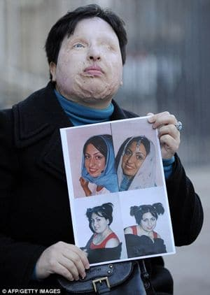Ms Ameneh holding pictures of what she used to look like pursuant to the attack.