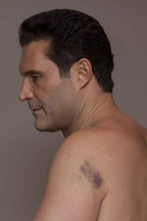 Adam Hock, nightclub brawler to sue for bruised shoulder.
