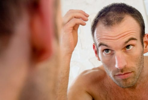Male pattern baldness.