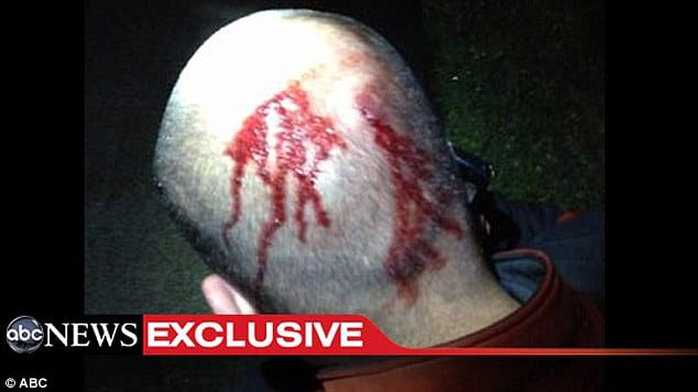 George Zimmerman photo of bloody head