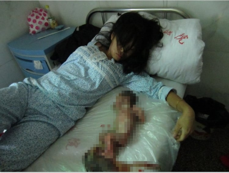 Chinese pregnant woman forced to have an abortion.