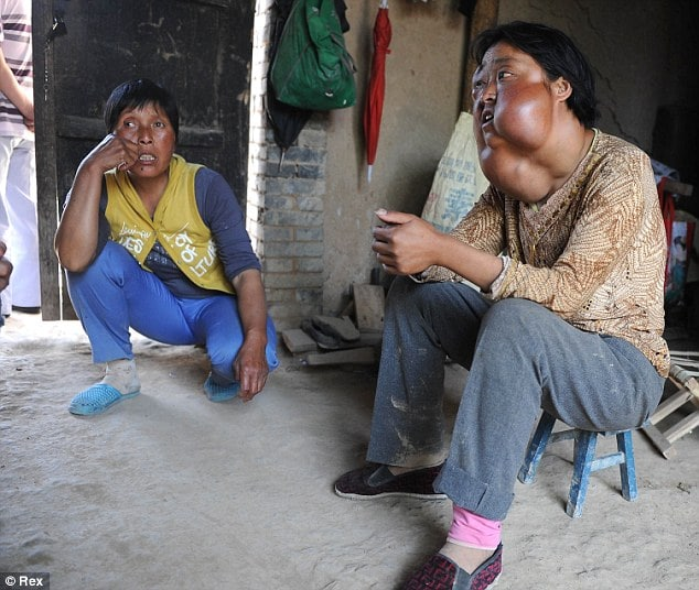 Chinese woman saddled with seven tumors on face appeals for help.