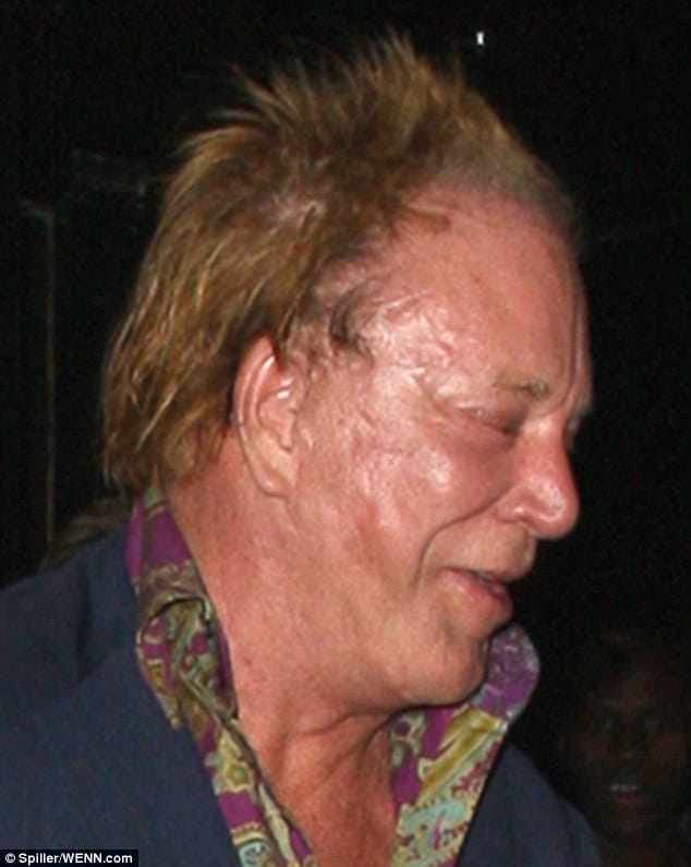 Mickey Rourke. More plastic surgery?