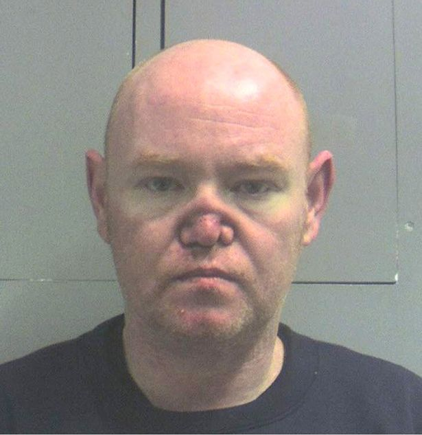 Millionaire whose nose collapsed after years of cocaine addiction gets jail.