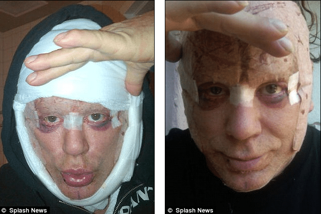 Heres Mickey Rourke with new plastic surgery. Still a hawt bixch….