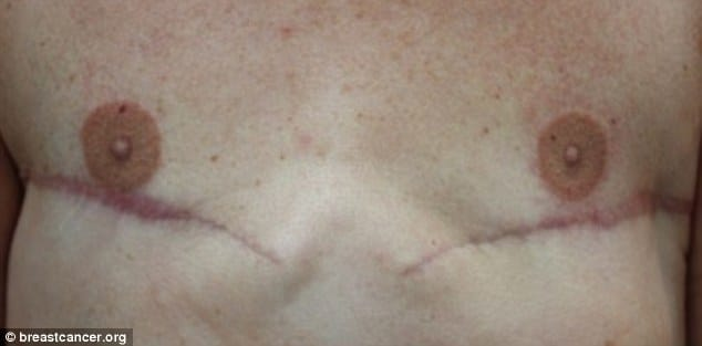 Mr Myers' tattoo treatment helps to restore the natural appearance of the breast.