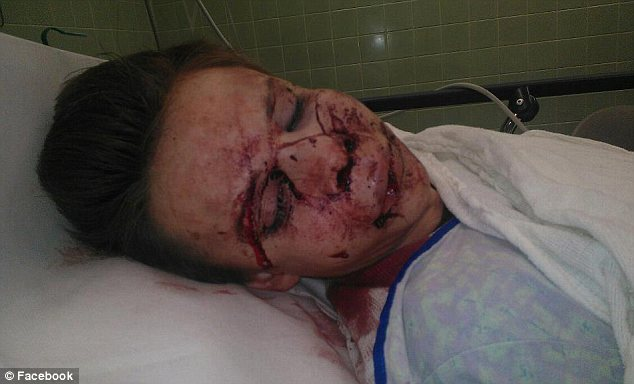 Lesbian brutally beaten by girlfriends brother at Thanksgiving dinner cause he disapproved of relationship.