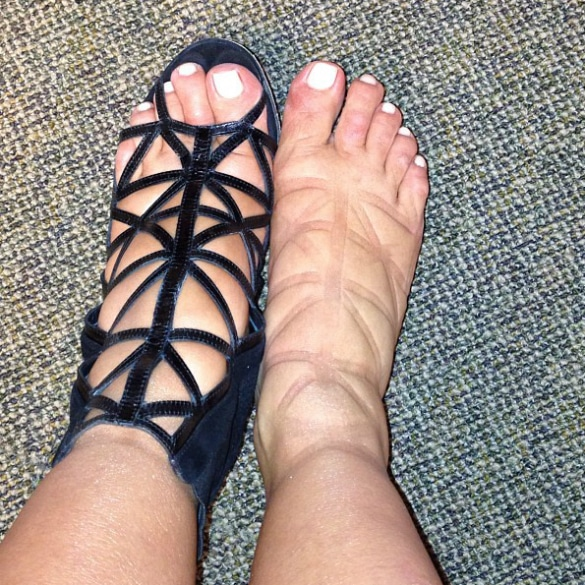Kim Kardashians swollen feet disgust at Met Ball.
