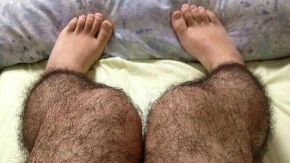Почему у девушек растут волосы на ногах