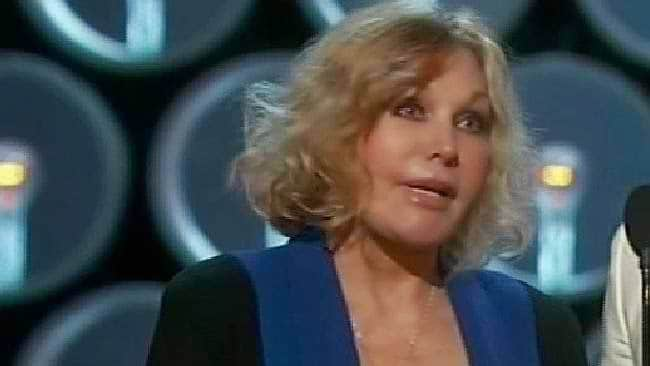 Kim Novak's Appearance Shocks At 2014 Oscar Awards-2