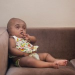Roona Begum operation, Indian baby with swollen head defies the odds.