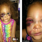 #Justice for AvaLynn. Was Lacey Harris' 5 year old daughter beaten up?