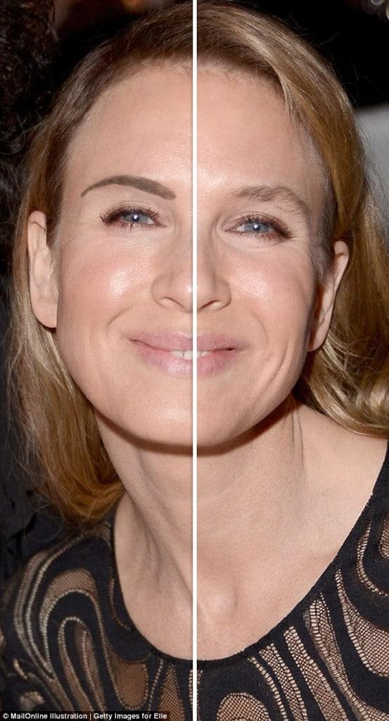 Renee Zellweger plastic surgery. Damned if she does, damned if she ... Renee Zellweger