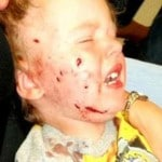Should pit bull owners whose dog attacked Chase Loney, three year old boy be made to give up dog?