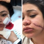 Paula Delos Santos becomes the latest woman in NYC to be slashed in the face as authorities tell of an increase on knife attacks and purposeful disfigurement incidents against women.