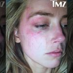 Is Amber Heard lying for money? Cops saw no black eye marks