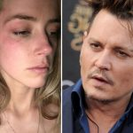 Pictured a bruised Amber Heard and Johnny Depp.