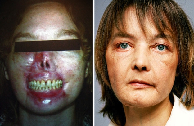 First face transplant patient dies after drug regime triggers cancer