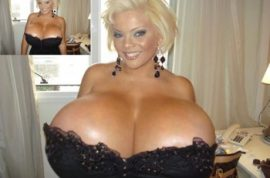 Sheyla Hershey has the World's Largest Breasts…but not for Long.