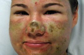 Acid Attack Victim Bethany Storro Admits Her Wounds were Self-Inflicted