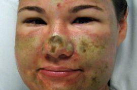 Bethany Storro has acid thrown on her face from a random stranger.