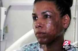 Derri Velarde: Copycat Acid Attack in Arizona, Second This Week – A Trend Forming?