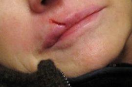 Martha Stewart's French bulldog Francesca slams into Martha's face.