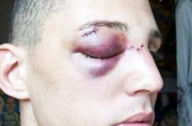 Damian Furtch is beaten because he's gay. What's up with that?