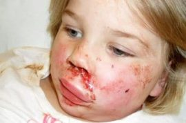 Thugs hurl brick in 4 year olds face after her father tells them to stop kicking a football at his van.
