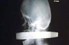 Man impaled in face, survives