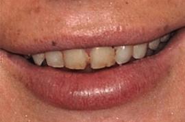 Lindsay Lohan: Look at me, no more meth teeth (for now).