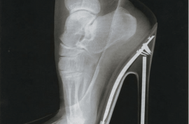 Now a close up of your foot in high heels ladies? Ouch!
