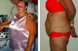 Woman sells her home to finance plastic surgery.
