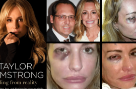Today Taylor Armstrong would like to tell you about the many times her husband struck her in the eye.