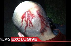 George Zimmerman trial: Is this the photo that will set him free?