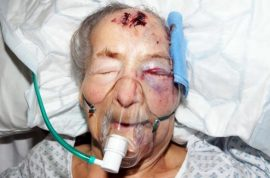 94-year-old woman savagely beaten while she slept, her attacker only stealing her finger.