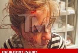Chris Brown nightclub brawl leads to innocent girl having her head smashed open by bottle.
