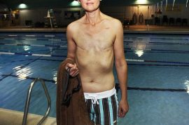 Breastless cancer survivor forbidden from swimming topless at public pool.