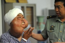 Chinese woman with disfigured face is transformed after miracle surgery.