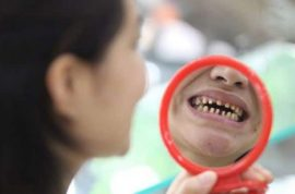 Chinese mother sues unlicensed dentist after he botches treatment: 'My baby thinks I look like a monster…'