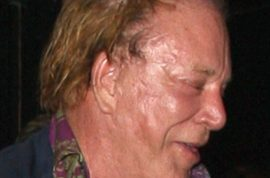 Oh grief! Mickey Rourke shows off new plastic surgery scars?