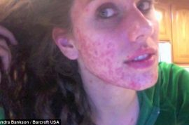 Acne ridden teen who endured years of bullying now becomes runway model.