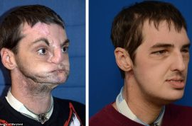 Gun accident victim shows off most extensive face transplant ever performed. Plastic surgery marvel…