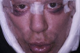 Here's Mickey Rourke with new plastic surgery. Still a hawt bixch….