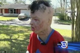 Boy tied to tree and set on fire names attacker on his death bed 13 years later.