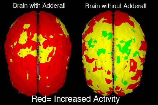 Adderall's effect on the brain.