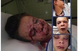 Mallory Owens reckons her beating was not a hate crime.